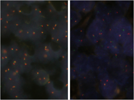 Fluorescent In Situ Hybridization (Formalin/PFA-fixed paraffin-embedded sections)