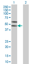 Western Blot (Transfected lysate)