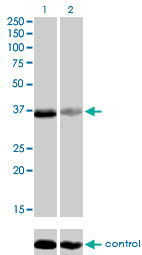 RNAi Knockdown (Antibody validated)