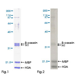 Kinase Assay