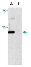 Western Blot (Recombinant protein)