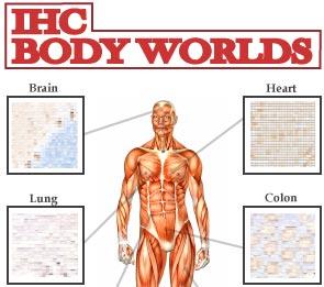 IHC Body Worlds